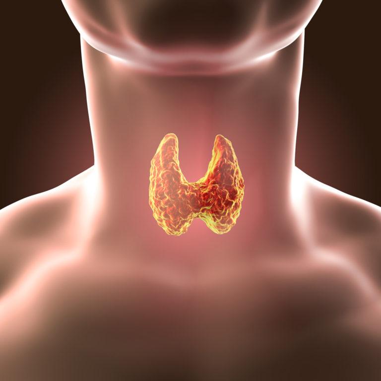 Kilpirauhanen – kilpirauhasen sairaudet, kilpirauhastulehdus, kilpirauhasen vajaatoiminta, kilpirauhasen liikatoiminta