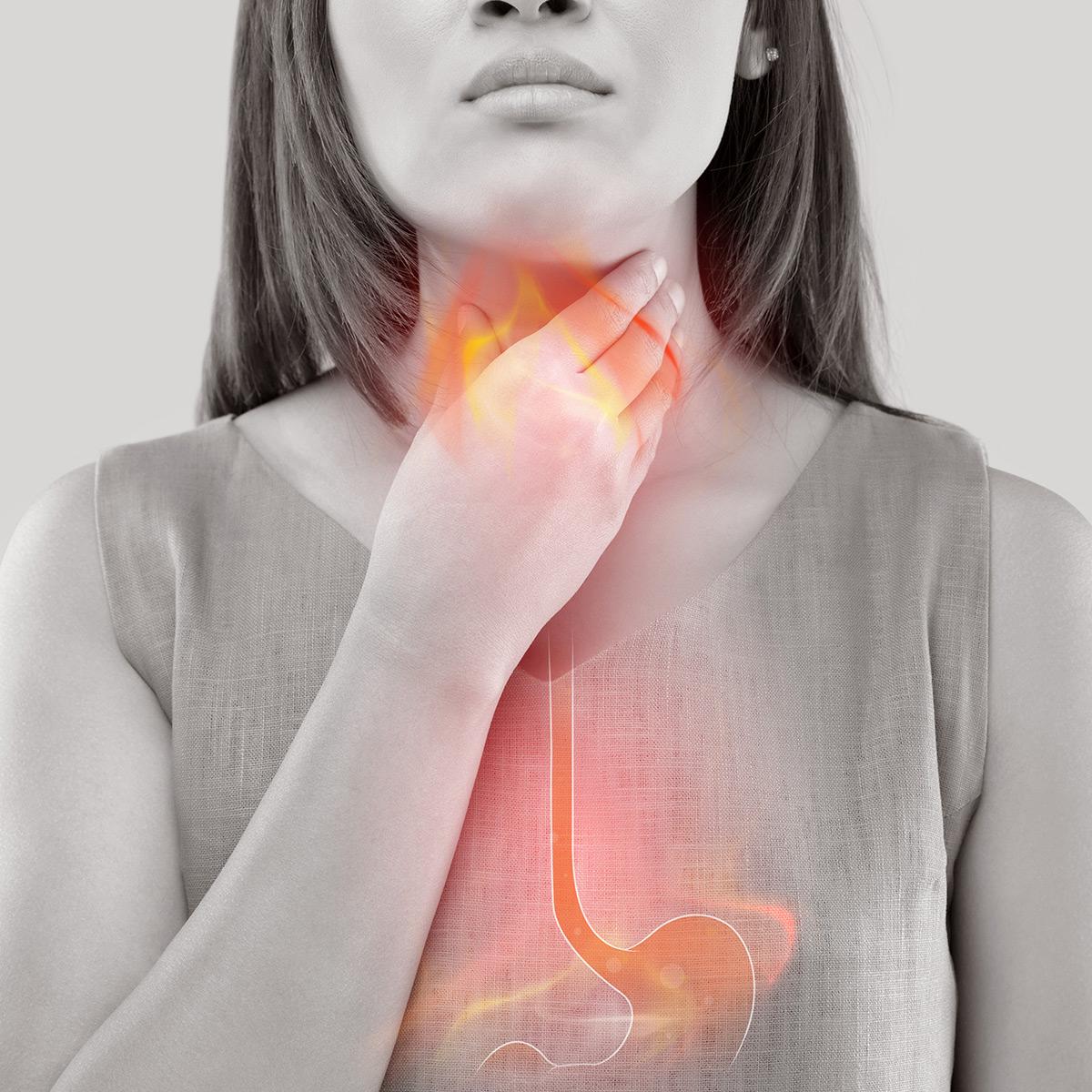 REFLUKSI – närästys, mahahapon takaisinvirtaus, ruokatorven takaisinvirtaustauti